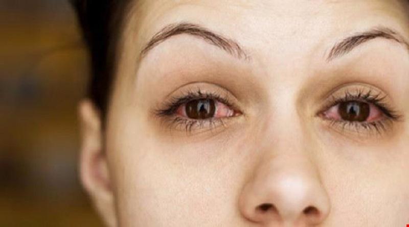 7 điều cần biết về dịch đau mắt đỏ
